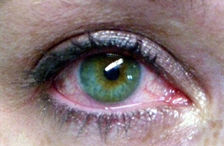 sindrome-occhio-secco