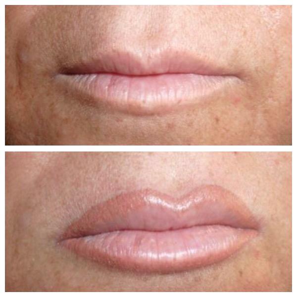 trattamento-labbra