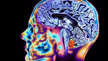 cervello_11_86731
